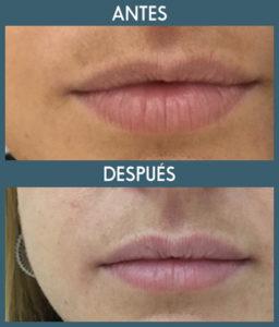 aprender realizar aumento de labios natural