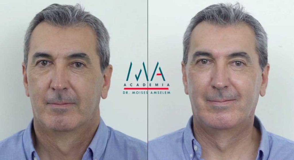 Aumenta la demanda de tratamientos estéticos para hombres, reinvéntate y ponte a la vanguardia en tu sector
