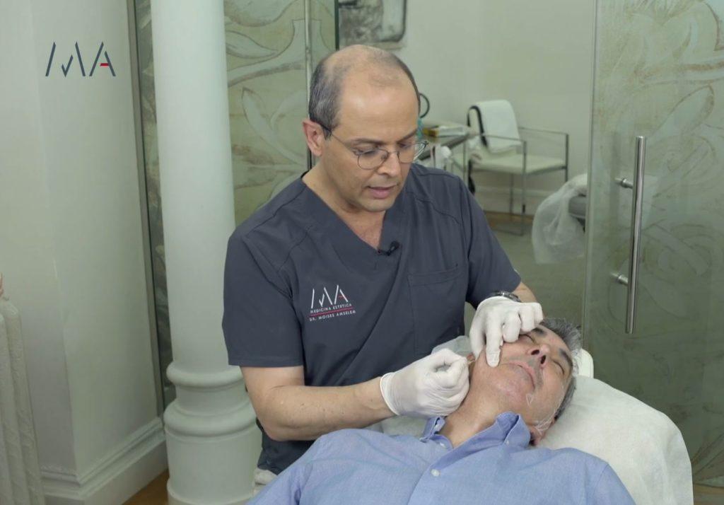 microinyecciones de Hidroxiapatita Cálcica