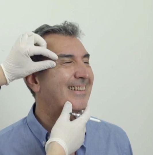 tratamientos estéticos más demandados por hombres